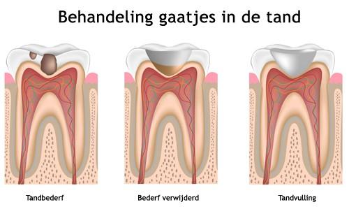 Tandartspraktijk de Oostpoort | Delft